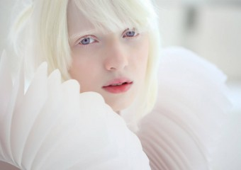 Snow Beauty: Incredible Albinos From Different Countries